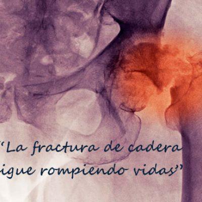 La fractura de cadera