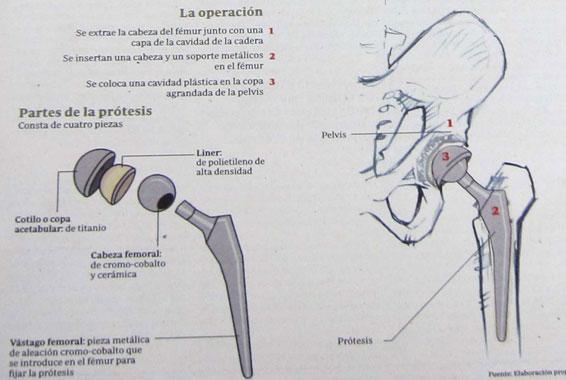cadera9